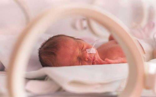 oftalmopediatria em Brasilia - recem nascido