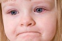 conjuntivite - oftalmologista brasilia